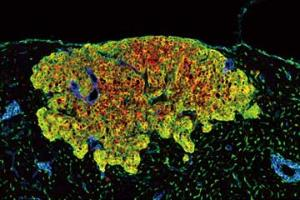 How Do Metastatic Tumor Cells Grow in Lymph Node?