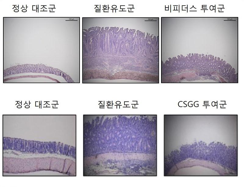 연구진은 이번 연구로 이로운 프로바이오틱스인 비피더스 PRI1균을 장 질환 염증을 가진 실험쥐에 투여하자 3주 후 염증이 줄어듦을 확인했다(위). 흥미롭게도 비피더스 PRI1균에서 순수 분리한 세포 표면 다당체(CSGG)만 실험쥐에 투여해도 염증성 장 질환의 억제 효능을 확인했다(아래)