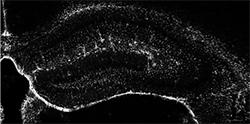 뇌 안의 은하수