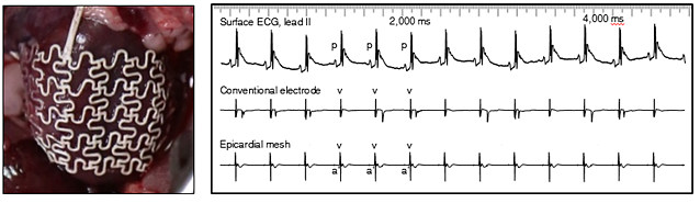 실험쥐의 심장에 감싼 심외막 그물막(왼쪽)과 심전도 측정 그래프. 전도성 고무 덕분에 훨씬 안정적인 심장 전기 신호를 보인다. (출처: 기초과학연구원)