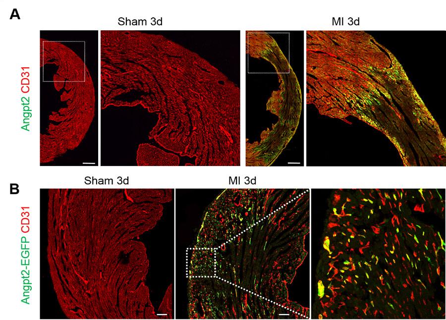 ▲ 심근경색을 유발하고 3일 후, 허혈성 경계지역의 내피세포를 관찰하자, 위 그림에서 아래쪽에서 보이듯angpt2(밝은 녹색)가 특이적으로 과발현됨을 발견했다.