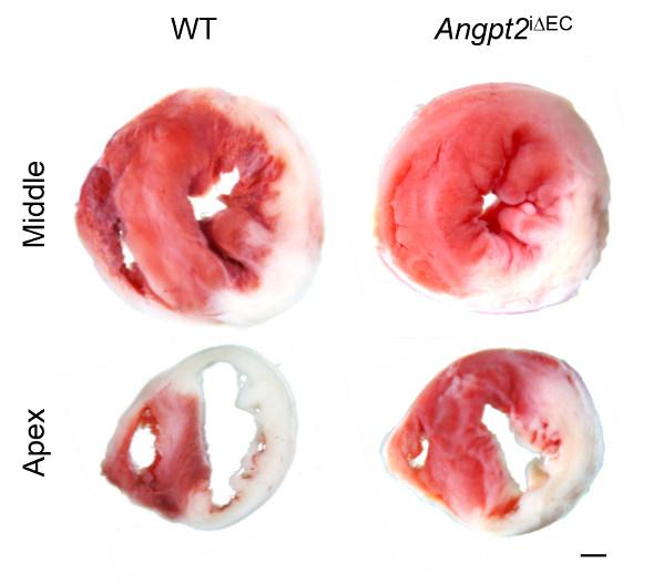 혈관내피세포에서 발현되는 angpt2 발현을 억제하자 좌심실의 중간 부위 및 심첨부에서 심근경색으로 인한 심근의 파괴가 유발된 범위가 감소함을 관찰했다.
