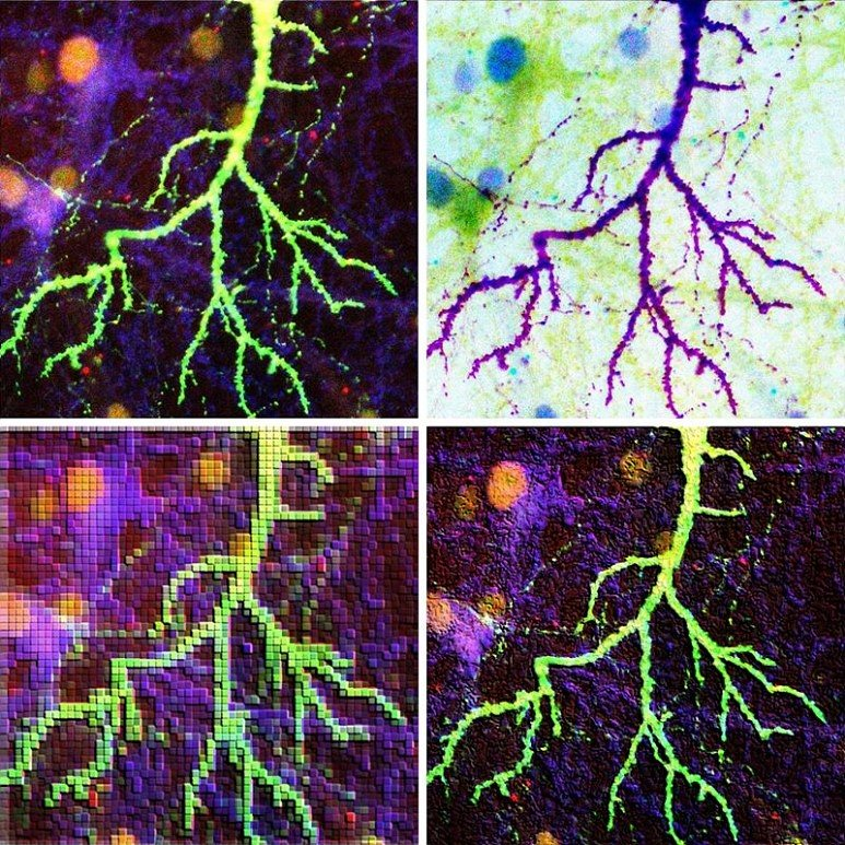 <섬광>, 이은경(IBS 시냅스 뇌질환 연구단), 2017 (사진: IBS)