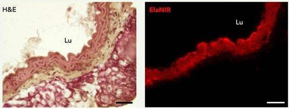 색방법(H&E, Hematoxylin and Eosin)으로 염색한 피부 조직(왼쪽)은 주변 다른 단백질까지 염색돼 정확하게 관찰하기 어렵다. (사진: IBS)