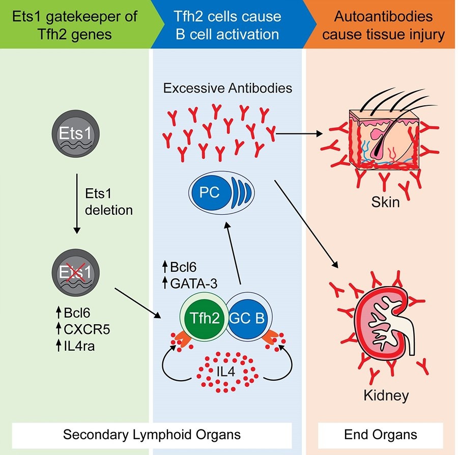 Figure 1: Lack of Ets1 gene leads to SLE.
