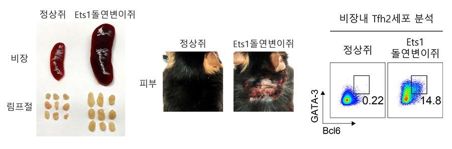 연구진은 면역세포가 결손된 생쥐들을 대상으로 실험을 한 결과, Ets1 유전자 변이가 도입된 생쥐의 경우 루푸스 환자와 비슷한 증상들이 나타남을 확인했다. 연구진은 오른쪽 그래프와 같이 Ets1 유전자 결손을 유도하면 Tfh2 세포가 증가해 루푸스가 발병한다는 사실을 확인했다. 그래프에서 보이는 것처럼 정상 쥐에서는 Tfh2 세포가 거의 존재하지 않는 반면 Ets1 유전자변이 생쥐에서는 Tfh2 세포가 상당수 존재한다. 즉, Tfh2 세포의 증가가 루푸스 증상을 유도함을 동물 실험으로 확인했다.