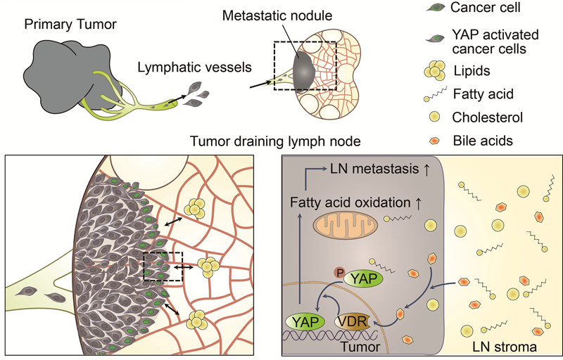 [Figure 1] Schematic diagram for the mechanism of tumor lymph node metastasis