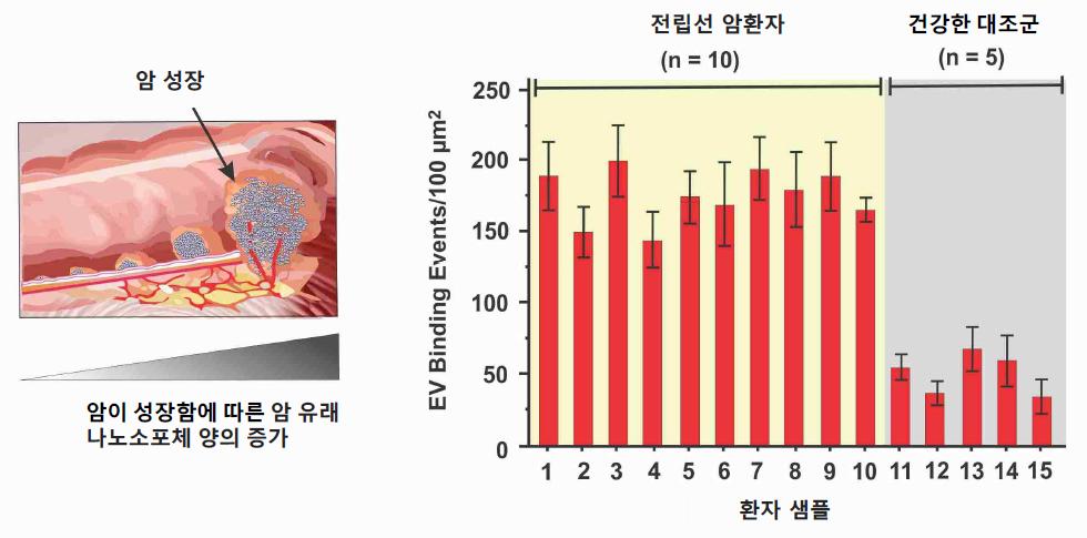 (왼쪽) 암세포가 커질수록 혈액 내 나노소포체 수가 증가함을 보여주는 모식도. (오른쪽) 혈소판 칩을 활용한 전립선 암 환자(표본 10개) 및 건강한 대조군(표본 5개) 유래 혈장 샘플의 플라즈모닉 반응 비교.