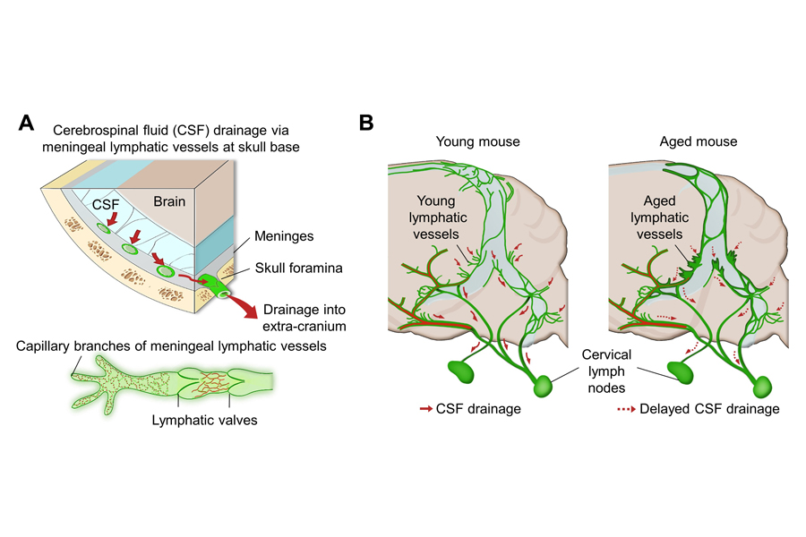 Figure 1 Schematic images of location and features of meningeal lymphatic vessels and their changes associated with ageing