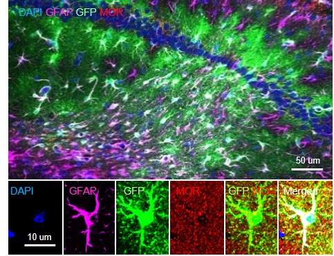 Figure 1 A representative image of MOR over-expression in hippocampal astrocytes of MOR-KO mice.