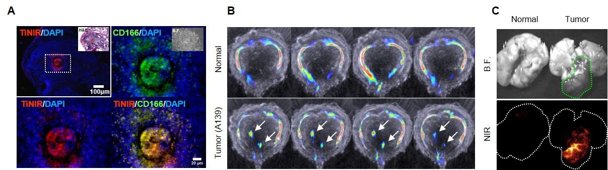 IBS 연구진이 개발한 새로운 형광물질 타이니어(TiNIR)는 암 줄기세포를 선택적으로 염색한다.
