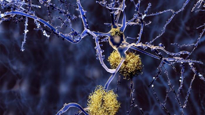 알츠하이머병의 특징인 뇌의 아밀로이드 플라크(노란색)가 축적된 모습. (출처: Nature)