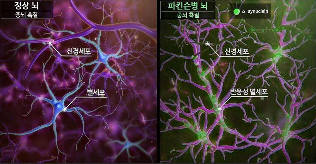 파킨슨병 환자의 중뇌 흑질은 정상인에 비해 별세포가 반응성을 띠고 있고, 신경세포의 기능이 멈춰있다.