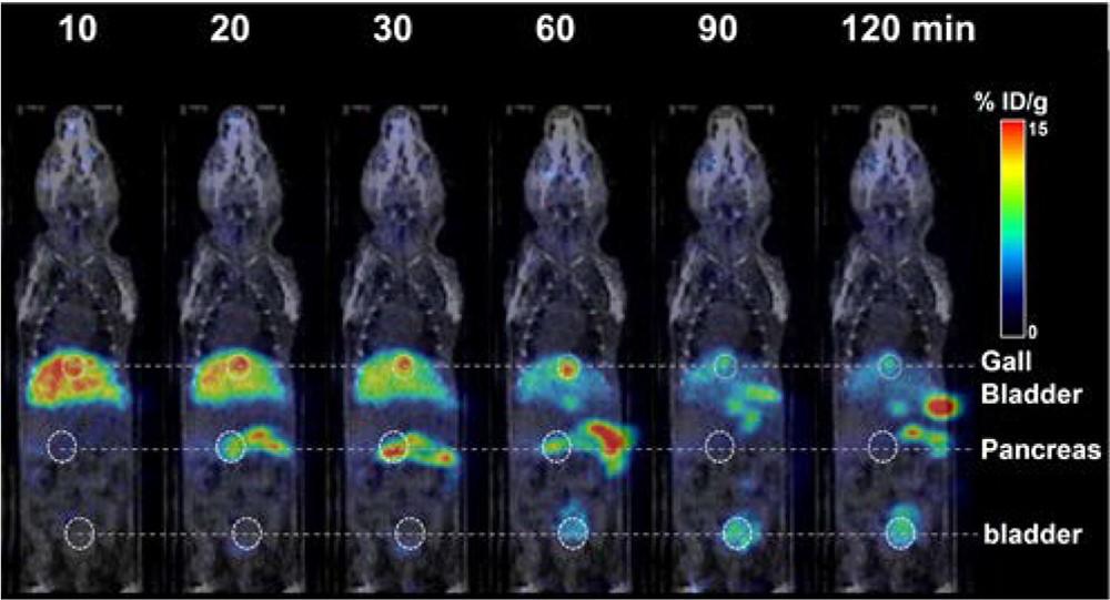 PiF를 주입한 뒤 촬영한 PET/CT 이미지.