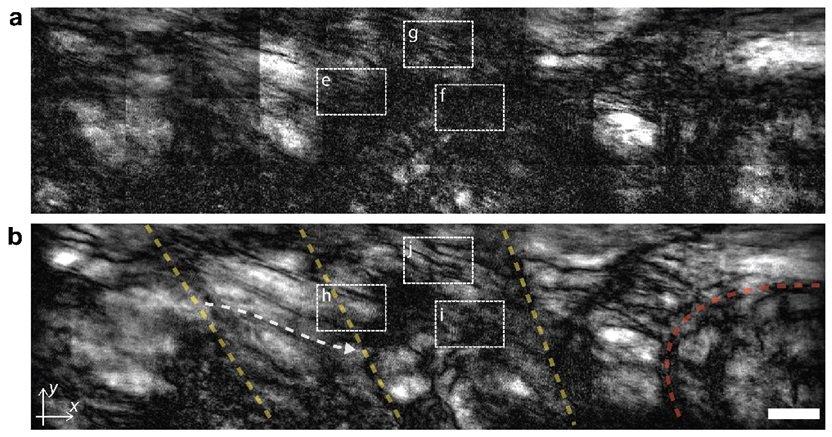 일반 광학 현미경(a)과 공간 게이팅 현미경(b)을 이용해 제브라피시 내부를 들여다 보았다. 공간 게이팅 현미경을 사용하면 기존에는 관찰하기 어려웠던 근육중격(노란 점선), 근육-뼈 접합부(붉은 점선) 등의 미세 구조를 관찰할 수 있다. (출처 : IBS)