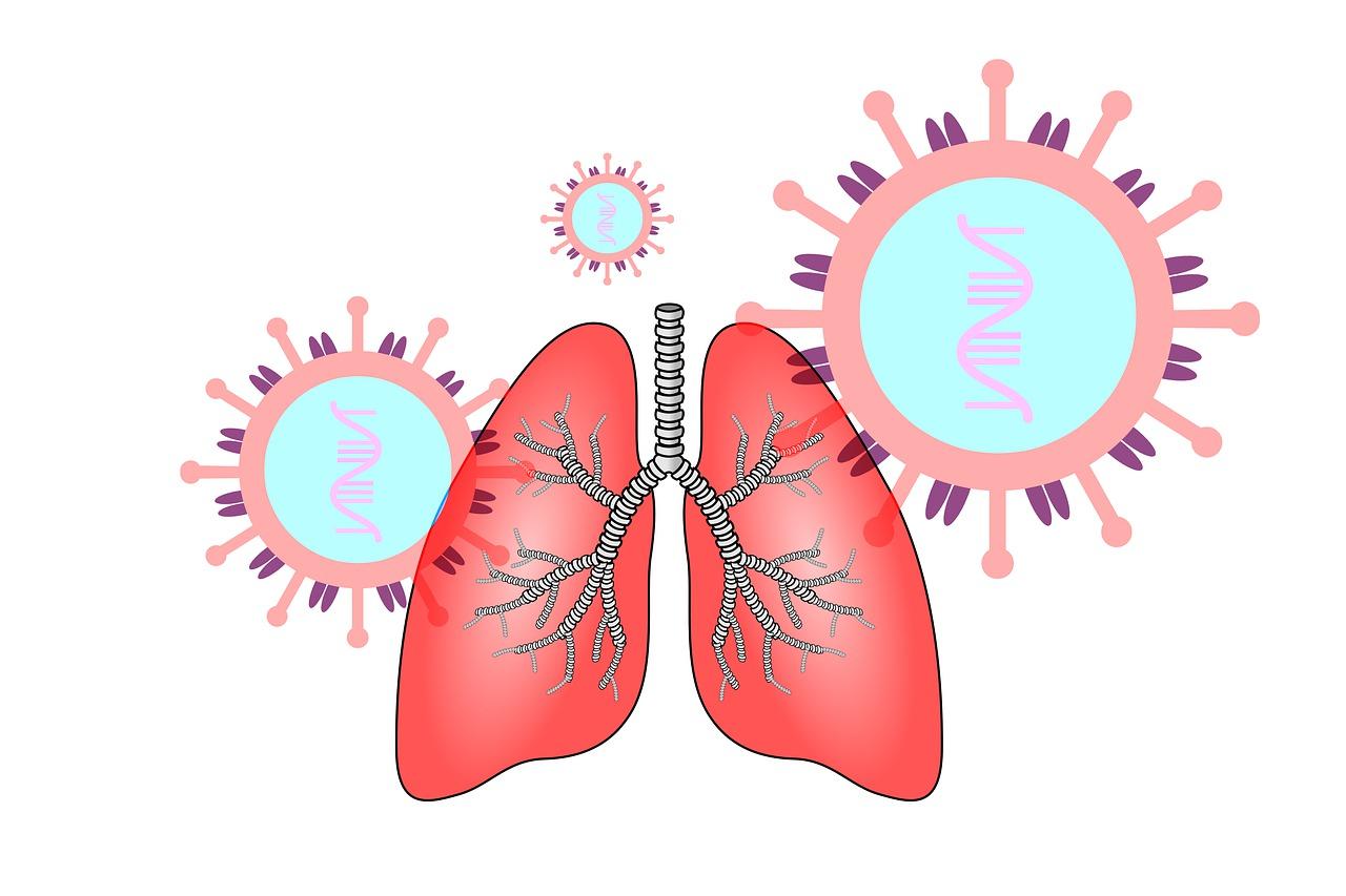 사스코로나바이러스-2의 침입으로 코로나19에 감염된 폐. (출처: Pixabay)