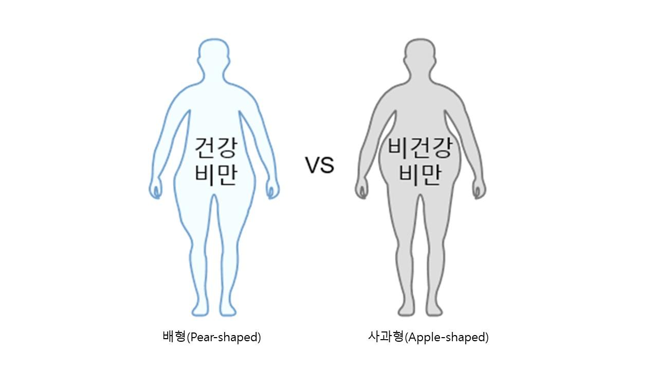 <건강한 비만과 일반 비만의 외형 차이>