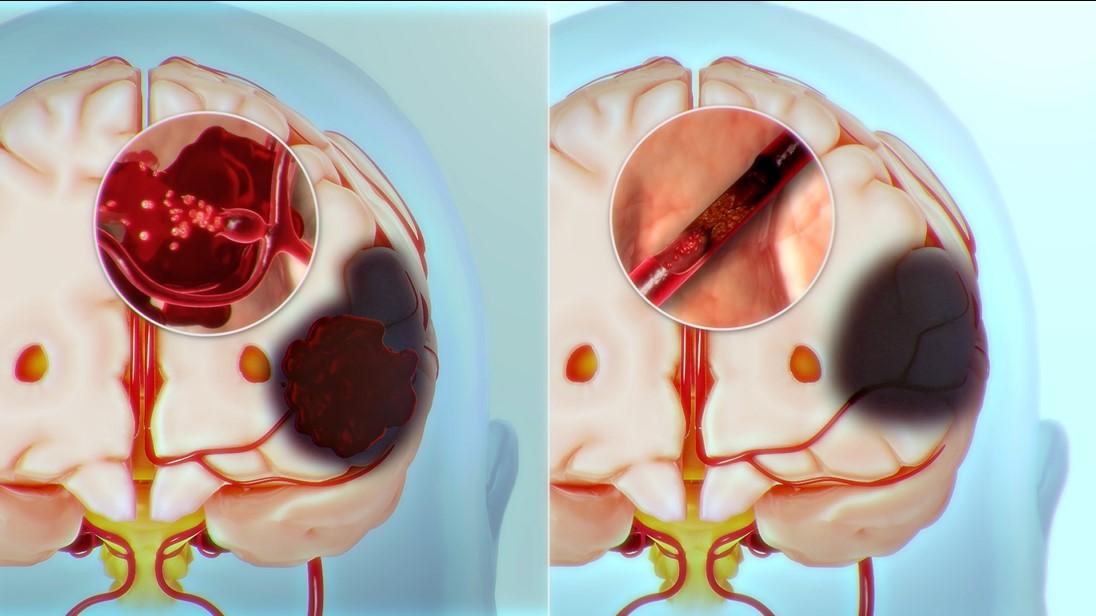 뇌졸중은 뇌혈관이 터지거나(좌) 막혀(우) 혈액을 공급받지 못하는 뇌 부위가 손상되는 질환이다. 언어장애(실어증), 반신마비, 치매, 성격변화, 식물인간, 대소변 못가림, 연하곤란(삼킴 장애) 등 다양한 후유증이 남는 심각한 질환이지만, 아직까지 뚜렷한 치료법이 없다.