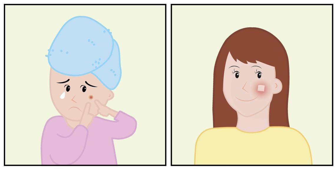 꿀을 바른 듯 윤기 나고 매끄러운 '꿀피부'는 남녀노소 누구나 열망하는 매력 포인트다. 그러나 황사, 미세먼지, 야근에 만성피로까지 시달리는 현대인들에게 꿀피부를 향한 길은 멀고도 험하기만 하다. 이번에 개발된 온열 패치는 투명하고 유연하며 무선 충전이 가능해 언제, 어디서든 피부 치료가 가능하다.
