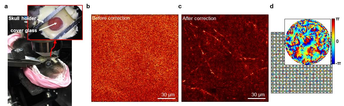 [Figure 3-1] Label-free reflectance imaging of myelinated axons in a mouse brain through the intact skull
