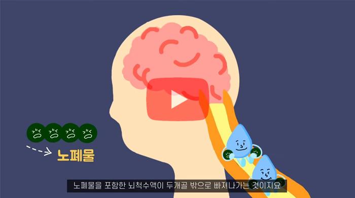 찾았다 뇌 속 하수도, 보인다 치매 치료!