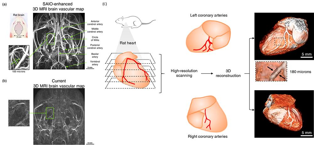 Figure 1. High-resolution 3D MRI brain vascular map
