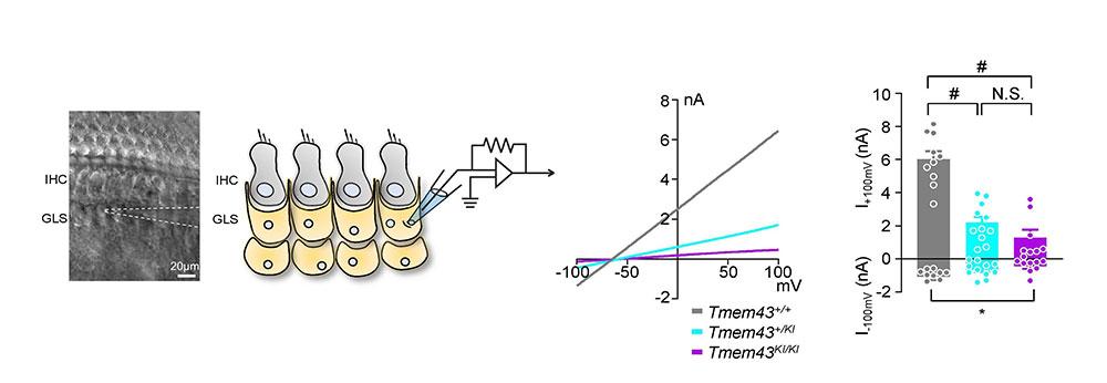 [그림 2] TMEM43 p.Arg372Ter 의 병리학적 메커니즘