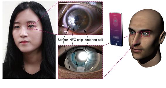 기초과학연구원(IBS) 나노의학 연구단은 눈물 속 스트레스 호르몬을 감지하여 스트레스 정도를 수치로 측정할 수 있는 '스마트 렌즈'를 개발했다. (출처: IBS)