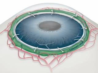 Draining Eyes Clogged with Glaucoma